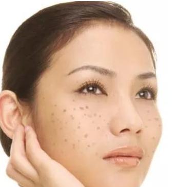怎么预防脸上长斑 四个方法解决脸上长斑问题