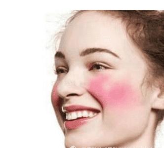 冬季敏感肌肤怎么护理 敏感肌肤护理方法