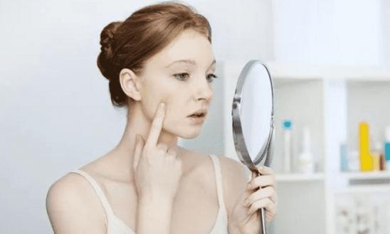 牙膏真的有祛痘效果吗 用牙膏洗脸祛痘原理分析