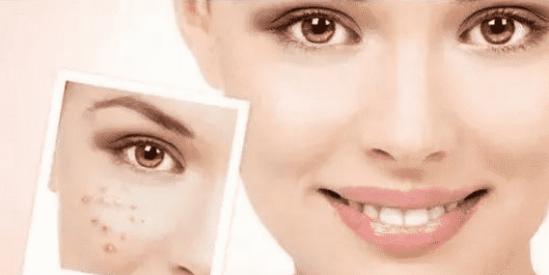 油性肌肤长痘痘怎么办 8种油性肌肤的护肤祛痘方法
