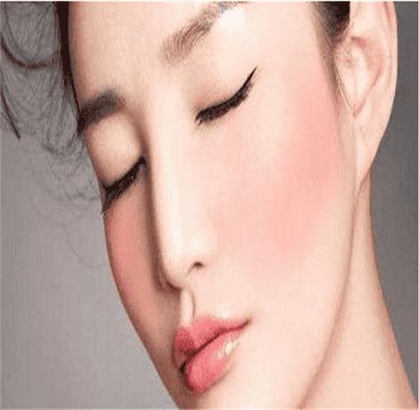 如何预防春季皮肤过敏 春季皮肤过敏预防方法