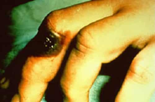 活炭疽菌是什么 活炭疽菌的症状