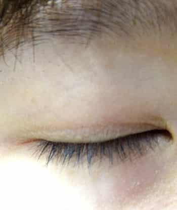 解怎样正确贴双眼皮贴方法 放大你的双眼更显闪亮动人