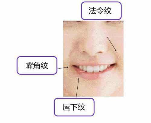 保养死角唇部护理 唇周细纹法令纹淡化法