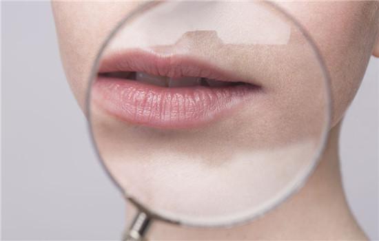 唇纹怎么去除,怎么样去除唇纹,去除唇纹的方法