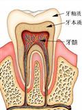 牙疼为什么那么疼 牙齿内部高强度压力所致