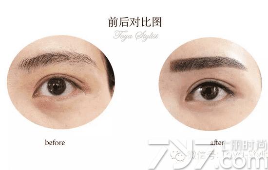 什么是美瞳线 所谓美瞳线就是,从眼角第一根睫毛做到眼尾最后一根睫毛、没有小尾巴,闭眼看不出来、睁眼不露白、又叫浓睫术。韩式半永久化妆美瞳线是采用数字仪器在睫毛之间与结膜内测添加点,在睫毛根部和靠近根部的褐线以上眼软骨填实,能够达到看起来非常自然,并使眼睛更加有神,引入注目的效果。  美瞳线的位置 纹美瞳线前,先了解美瞳线的正确位置。美瞳线的设计是把线条做在眼睑板那里,更贴近睫毛根部而且更细,做完后外表基本看不出,但是眼睛明显变得更大更炯炯有神。