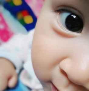 宝宝眼睛一大一小怎么回事啊 家长切勿忽视孩子大小眼