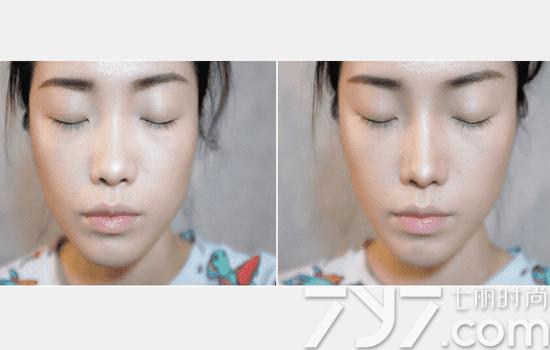 鼻侧影画法图解