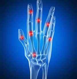 孕妇晚期手指关节痛胀痛是怎么回事