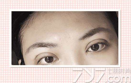 割双眼皮恢复过程图解,割双眼皮恢复过程记录,割双眼皮恢复过程照