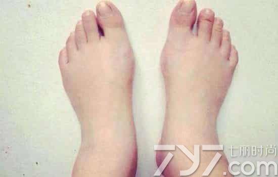 夏天脚肿是什么原因,夏天脚肿是怎么回事,天热脚肿胀怎么回事