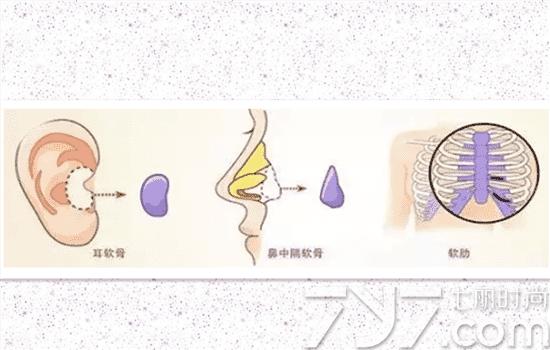 自体隆鼻好还是假体好自体和假体隆鼻有哪些不同