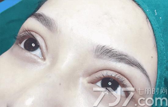 纳米双眼皮是永久的吗,纳米双眼皮保持几年,纳米双眼皮能保持多久