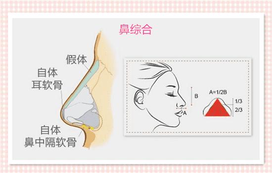 怎样让鼻头�9l#_单纯隆鼻和综合隆鼻的区别:适合人群不同单纯隆鼻单纯隆鼻更适合鼻头