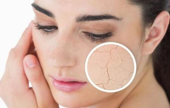 皮肤干燥的原因 引起皮肤干燥的五大原因你知道吗