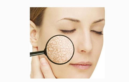 皮肤过敏症状有哪些 带你了解真正的皮肤过敏