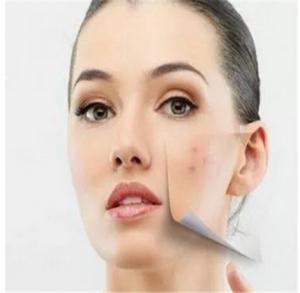 皮膚角質層受損怎么修復 做好這四點的防護