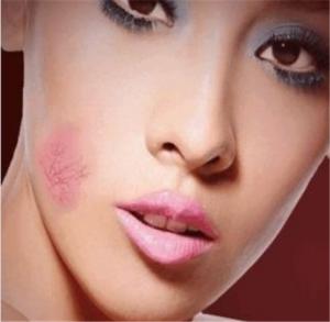 化妆浮粉起皮怎么解决 化妆浮粉起皮什么原因
