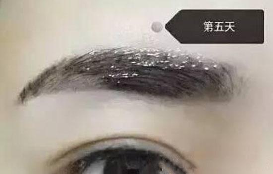 纹眉后修复液涂几天 至少要涂5-7天