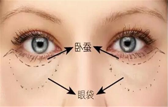 卧蝉眼和眼袋的区别 不要将卧蚕和眼袋弄混啦