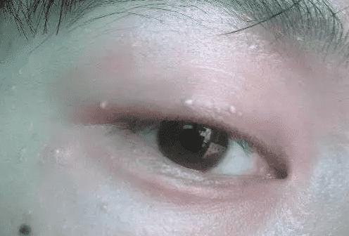 眼霜用了长脂肪粒? 眼霜表示不背这个锅