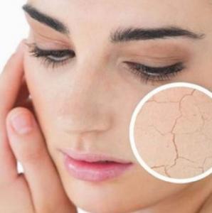 脸部干燥起皮怎么补水 这样做准没错