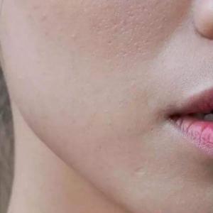 臉上起皮可以去角質嗎 這樣判斷是否需要去角質