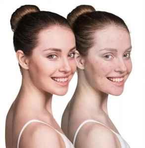 如何消除鼻翼兩側發紅