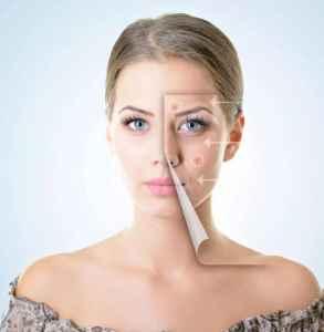 美白產品的副作用 這五大副作用不可忽視