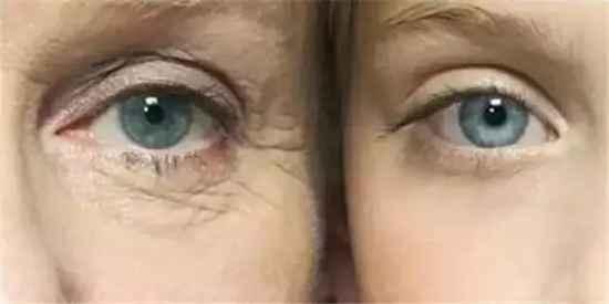 30岁女人护肤品排行 30岁用什么牌子眼霜好