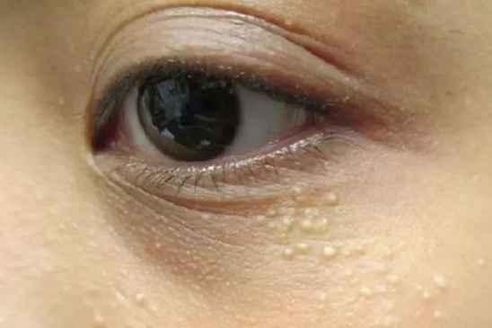 眼周的小白粒是什么 又该怎么去掉呢