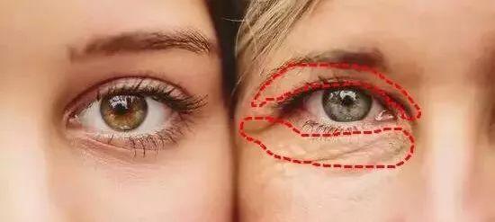 眼部护肤小知识 初步抗氧化攻略快收好