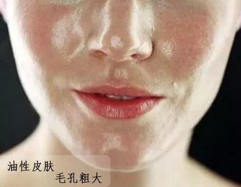 怎么判断自己什么肤质 自己的肤质都没搞清还怎么护肤