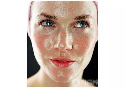 油性皮肤怎么护肤