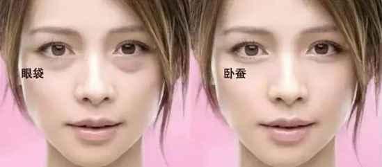 眼袋黑眼圈怎么消除  为什么你会有眼袋黑眼圈你知道原因吗