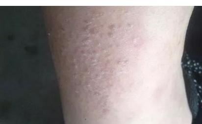 冬天为什么会过敏 皮肤过敏原因分析