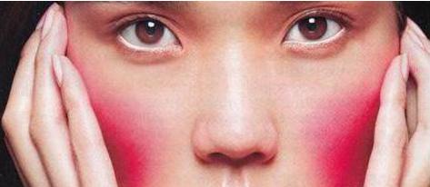 脸颊红润是怎么回事 三个原因引起你的脸颊红润