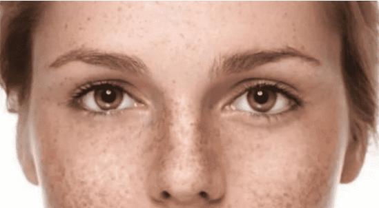 怎么预防脸上长斑点 四点教你预防脸上长斑