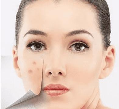 脂溢性皮炎怎么预防 9种有效预防脂溢性皮炎