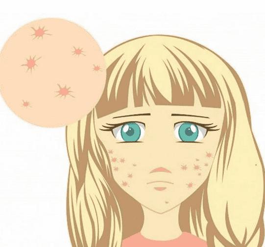 激素脸是怎么形成的 拯救激素脸的有效方法