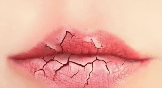 冬季如何护唇正确的冬季护唇技巧你要知道