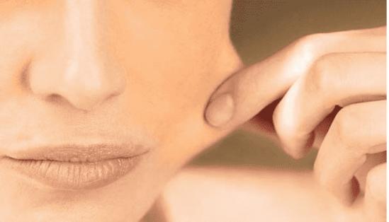 皮肤暗黄怎么调理 皮肤蜡黄显老这样调理效果好 改善皮肤暗黄的5种方法 皮肤暗黄无光泽怎么调理