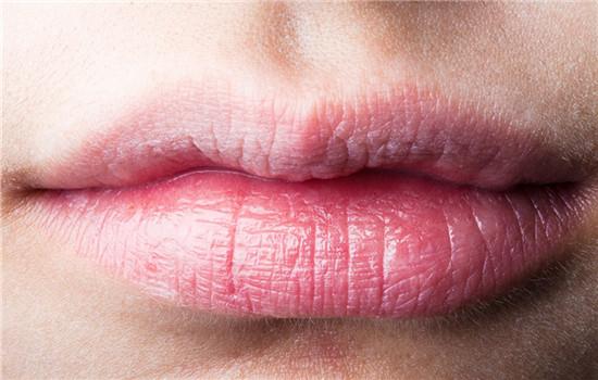 嘴唇干是什么原因 七大原因导致嘴唇干裂