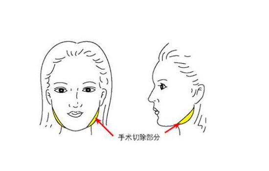 脸宽骨骼大怎么办 瘦脸前先辨清脸型