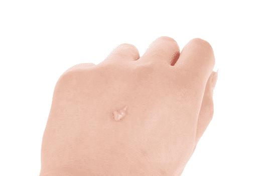 比度克拔毒膏 比度克拔毒膏好用吗 中药成分可以促进痘痘的熟化