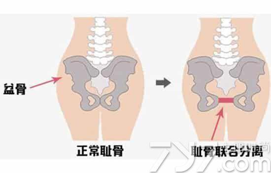 孕妇耻骨分离的症状 如何预防耻骨分离