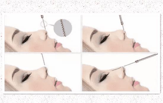 隆鼻都有什么方法有哪些方法有哪些方法有哪些