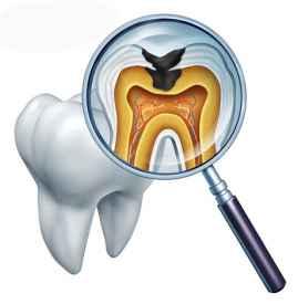 拔牙后感染了的症状 拔牙后感染的几率很大