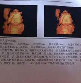 四维彩超sd值什么意思 胎儿发育的重要指标-四维彩超的最佳时间,四图片